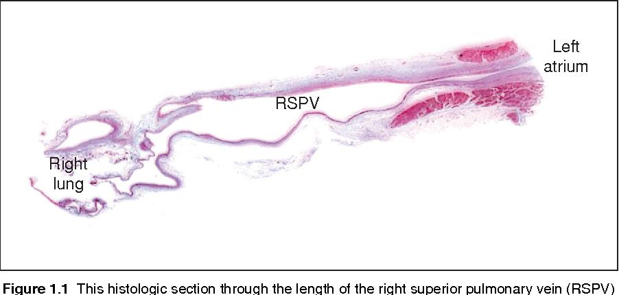 Anatomy of the left atrium and pulmonary veins - Semantic Scholar