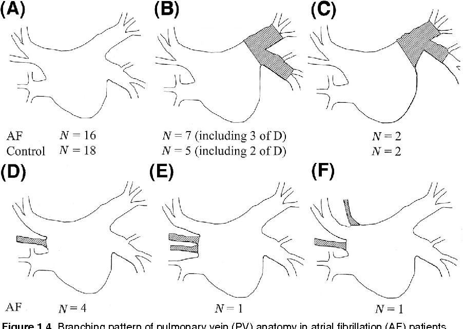 Único Pulmonary Vein Anatomy Ornamento - Imágenes de Anatomía Humana ...