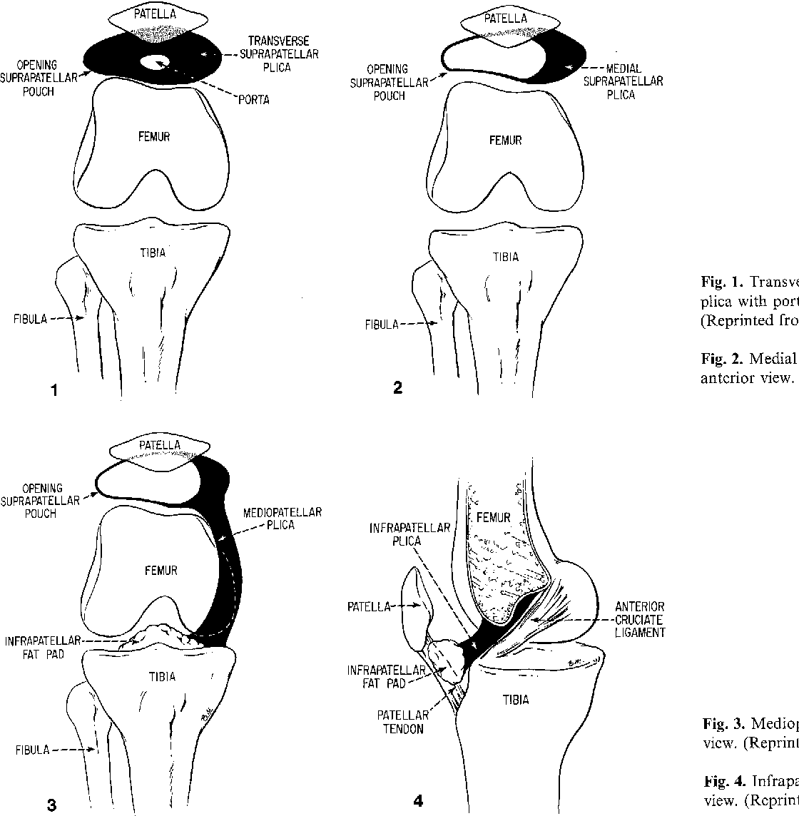 Synovial plicae of the knee - Semantic Scholar