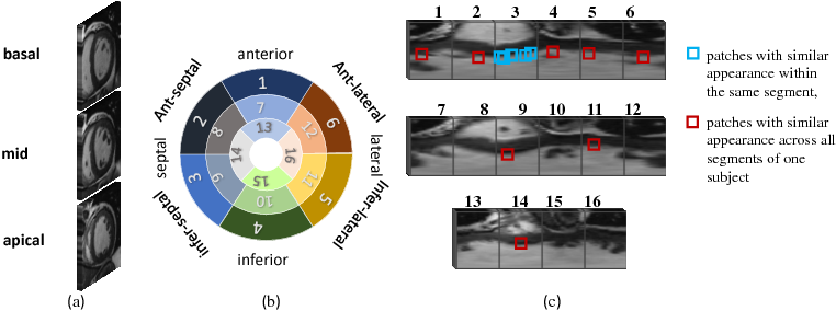 Figure 2 for Cardiac Motion Scoring with Segment- and Subject-level Non-Local Modeling