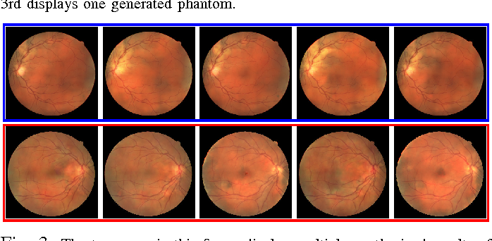 Figure 4 for Synthesizing Filamentary Structured Images with GANs