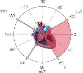 Figure 1 for CLOCS: Contrastive Learning of Cardiac Signals
