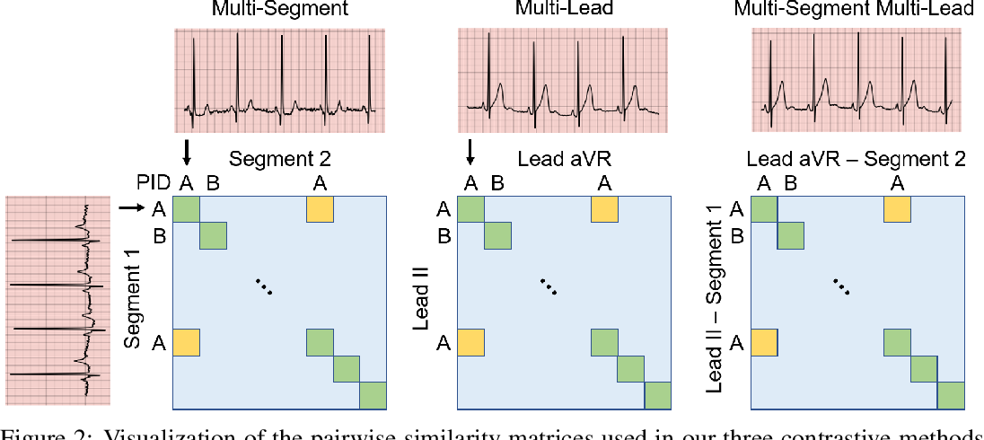 Figure 3 for CLOCS: Contrastive Learning of Cardiac Signals