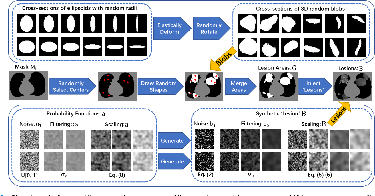Figure 3 for Label-Free Segmentation of COVID-19 Lesions in Lung CT