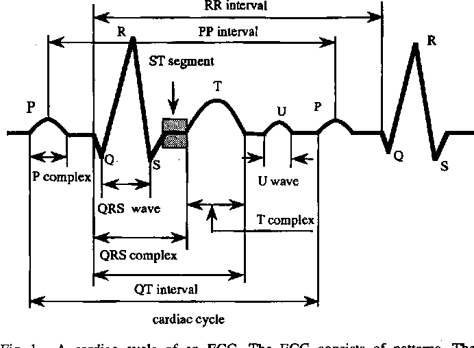 Self-organizing QRS-wave recognition in ECG using neural networks