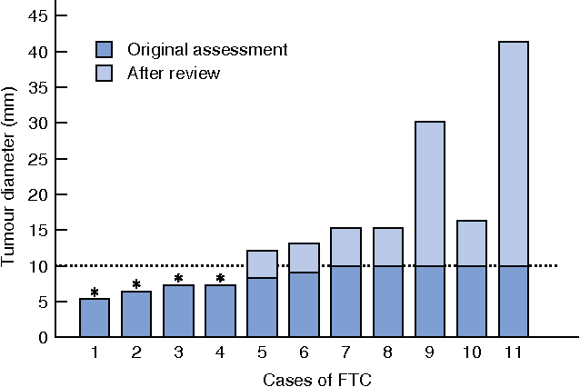 Fig. 1 Size determination of follicular thyroid carcinomas (FTCs) at the original assessment and at the review for this study. *Size of microcarcinoma confirmed at review. The dotted line at 10 mm indicates the threshold for a diagnosis of microcarcinoma