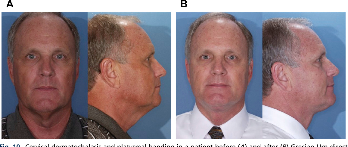Figure 10 From Techniques For Rejuvenation Of The Neck Platysma