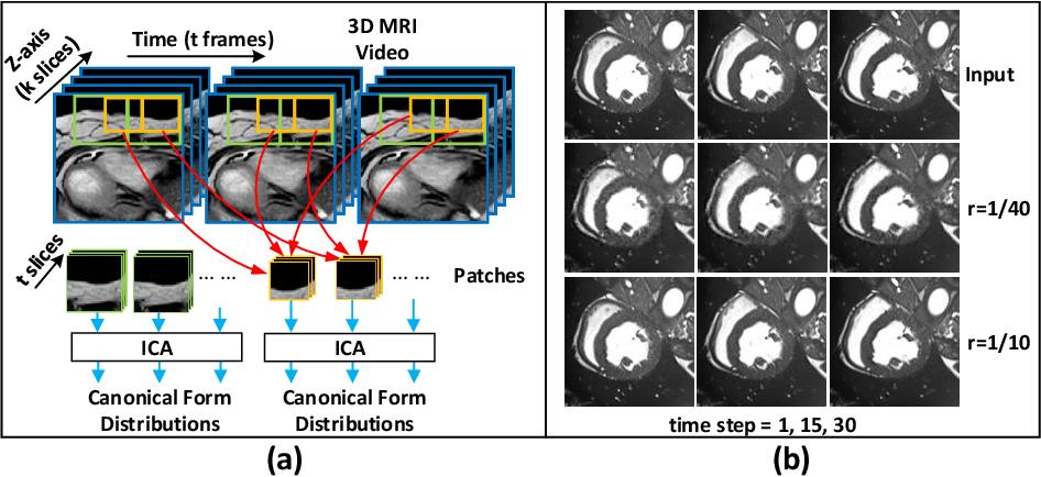 Figure 1 for MSU-Net: Multiscale Statistical U-Net for Real-time 3D Cardiac MRI Video Segmentation