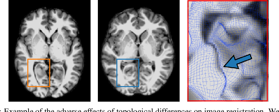 Figure 1 for Spot the Difference: Topological Anomaly Detection via Geometric Alignment