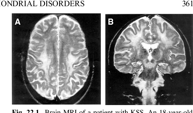 Brain MRI of a patient with KSS. An 18-year