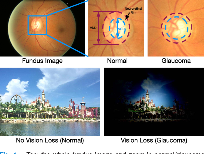 Figure 1 for Disc-aware Ensemble Network for Glaucoma Screening from Fundus Image