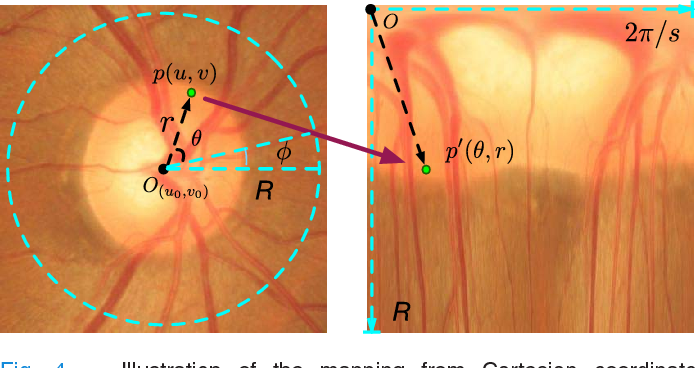 Figure 4 for Disc-aware Ensemble Network for Glaucoma Screening from Fundus Image