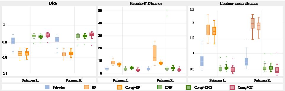 Figure 2 for Prior-based Coregistration and Cosegmentation