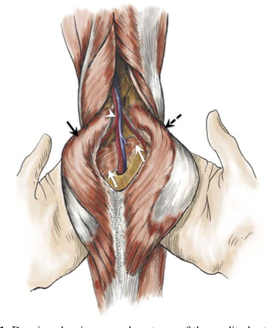 Uncommon Diseases of The Popliteal Artery: A Pictorial Review ...