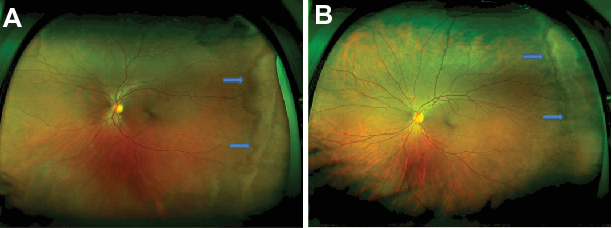 Figure 1 A And B Color Fundus Photograph Of White Without Pressure