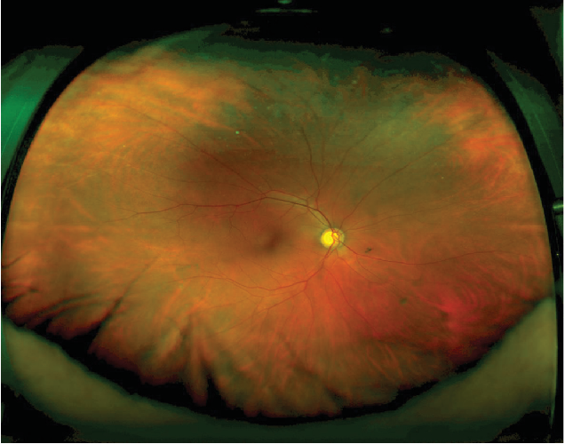 Figure 2 Color Fundus Photograph Of An Eye Without White Pressure Or Peripheral Pathology