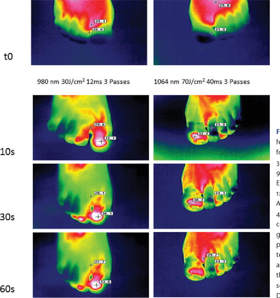 Figure 1 from Laser therapy of onychomycosis  - Semantic Scholar