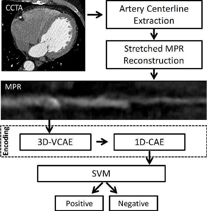 Figure 1 for Deep learning analysis of cardiac CT angiography for detection of coronary arteries with functionally significant stenosis
