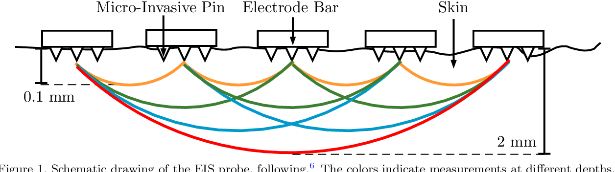 Figure 1 for Melanoma detection with electrical impedance spectroscopy and dermoscopy using joint deep learning models