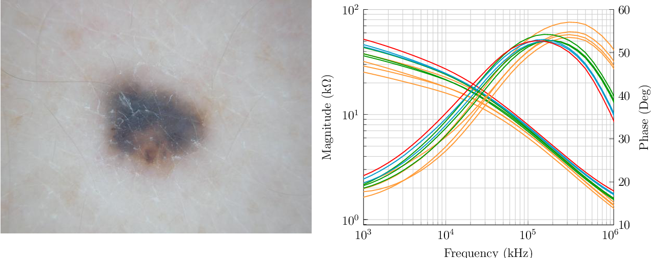 Figure 3 for Melanoma detection with electrical impedance spectroscopy and dermoscopy using joint deep learning models