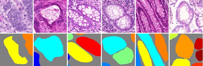 Figure 1 for Gland Instance Segmentation by Deep Multichannel Neural Networks