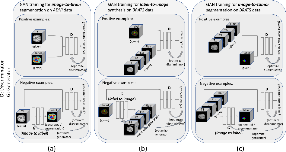 Figure 1 for Medical Image Synthesis for Data Augmentation and Anonymization using Generative Adversarial Networks