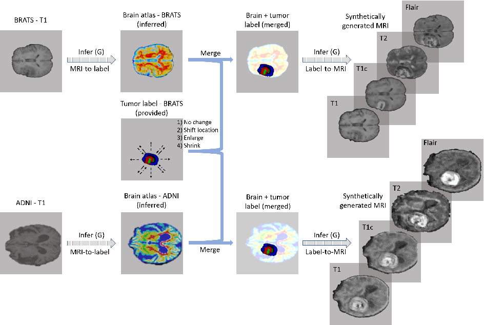 Figure 3 for Medical Image Synthesis for Data Augmentation and Anonymization using Generative Adversarial Networks