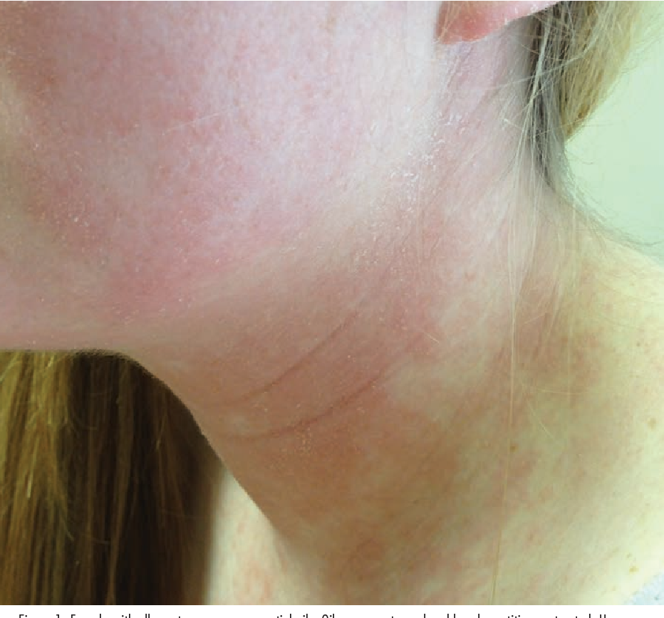 Figure 1 from Allergic contact dermatitis in atopic
