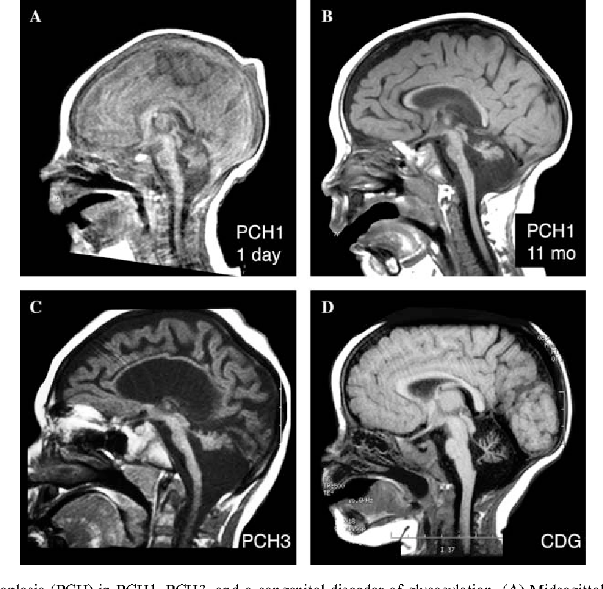 Figure 6 from Human malformations of the midbrain and