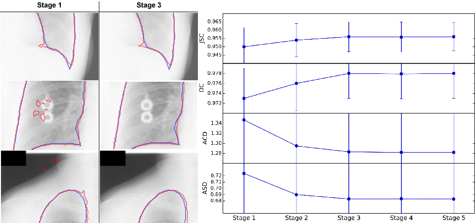 Figure 3 for Accurate Lung Segmentation via Network-Wise Training of Convolutional Networks