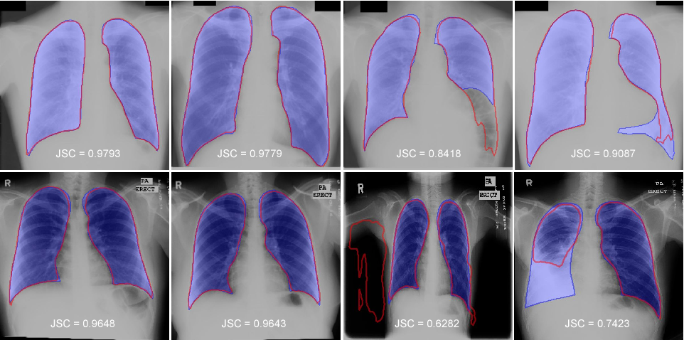 Figure 4 for Accurate Lung Segmentation via Network-Wise Training of Convolutional Networks