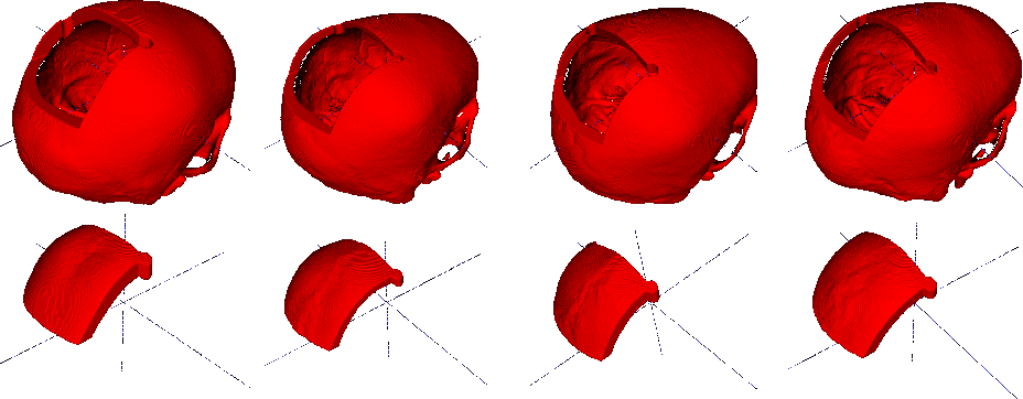 Figure 1 for Cranial Implant Prediction using Low-Resolution 3D Shape Completion and High-Resolution 2D Refinement