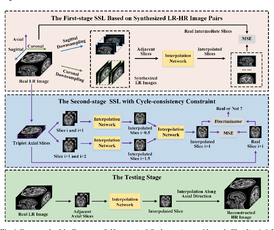 Figure 1 for Two-Stage Self-Supervised Cycle-Consistency Network for Reconstruction of Thin-Slice MR Images