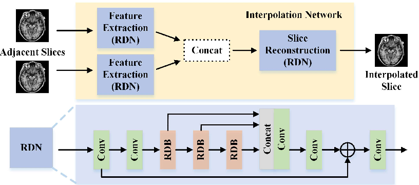 Figure 3 for Two-Stage Self-Supervised Cycle-Consistency Network for Reconstruction of Thin-Slice MR Images