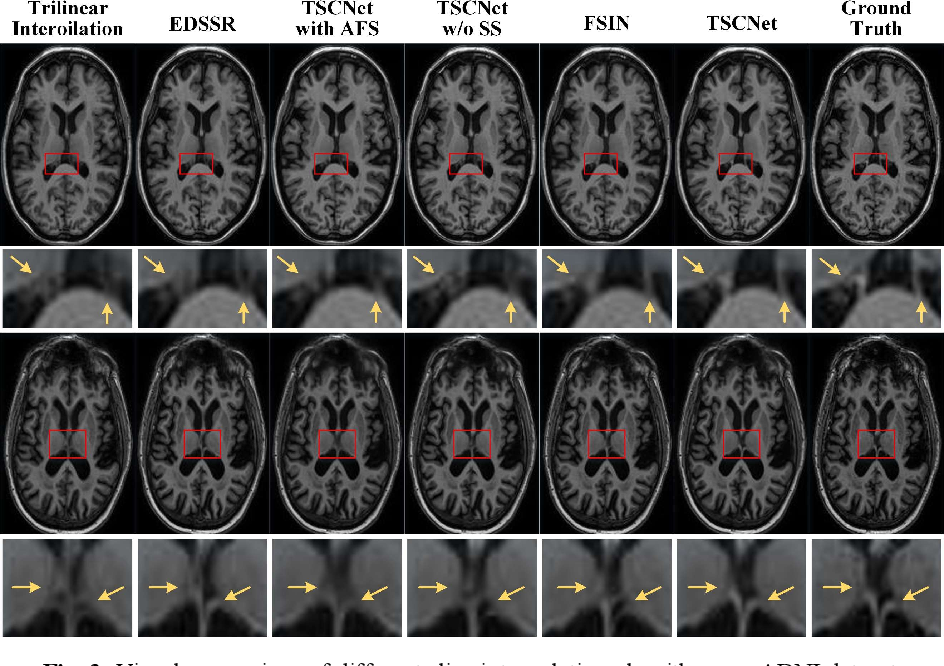 Figure 4 for Two-Stage Self-Supervised Cycle-Consistency Network for Reconstruction of Thin-Slice MR Images