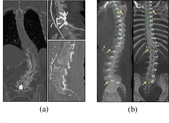 Figure 1 for Adversarially Learning a Local Anatomical Prior: Vertebrae Labelling with 2D reformations