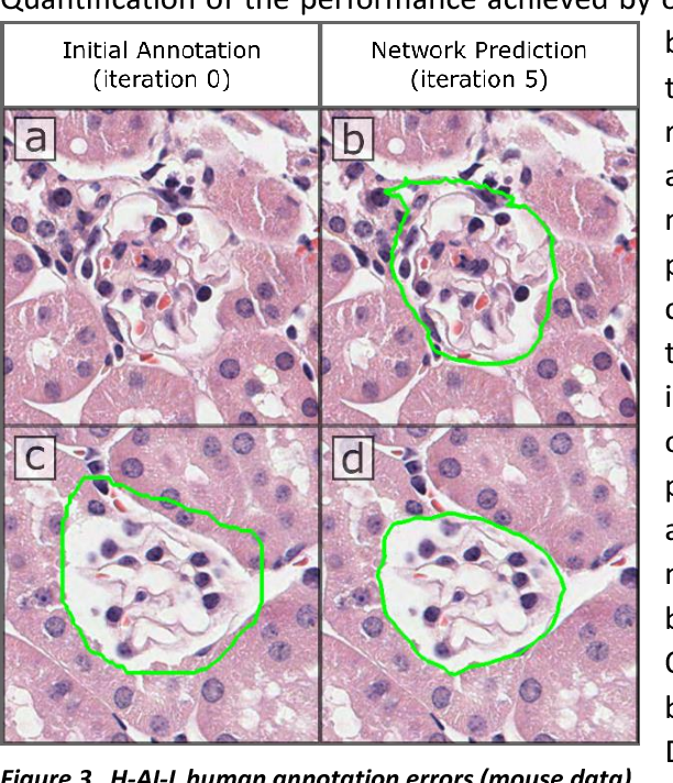 Figure 4 for Iterative annotation to ease neural network training: Specialized machine learning in medical image analysis