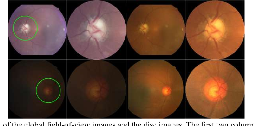 Figure 3 for Performance assessment of the deep learning technologies in grading glaucoma severity