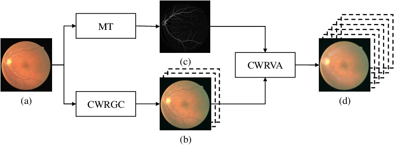 Figure 1 for Robust Retinal Vessel Segmentation from a Data Augmentation Perspective