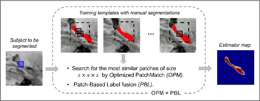 Figure 3 for An Optimized PatchMatch for Multi-scale and Multi-feature Label Fusion