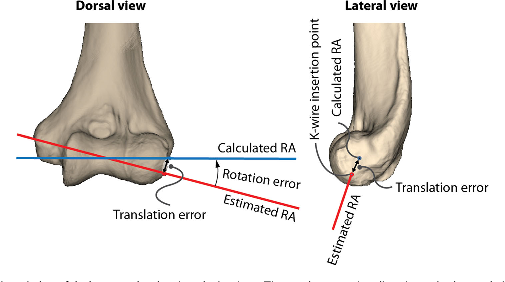 Accuracy in identifying the elbow rotation axis on simulated ...