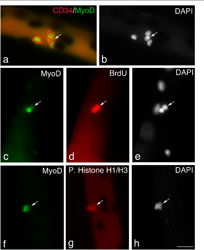 Figure 3. Satellite cells can maintain Pax7, but lose MyoD. Quiescent satellite cells are generally distributed as single cells along the length of the myofiber. Between 24–48 h in culture, almost all satellite cells express both Pax7 and MyoD and begin to divide; therefore, it can be assumed that most pairs/small groups of cells present at these times are derived from a single parent satellite cell. Immunostaining followed by X-gal incubation of EDL myofibers from a 3F-nlacZ-E mouse after 48 h in culture shows that of four CD34 ve satellite cells (a, red-cell surface), three contained MyoD protein (a, green nuclear), but significantly one did not (a and b, arrows). These MyoD ve cells (c–e, arrows) had undergone division, as shown by the incorporation of BrdU into the daughter cells (d), and were not merely quiescent satellite cells. Whether MyoD protein levels vary with cell cycle is unresolved (Kitzmann et al., 1998; Lindon et al., 1998). However, it is important that both the MyoD ve and MyoD ve progeny of a single satellite cell could be in the same phase of the cell cycle (f–h). An example is shown where immunostaining followed by X-gal incubation of an EDL myofiber from a 3F-nlacZ-E mouse after 48 h in culture shows that MyoD ve (f) and MyoD ve (f–h, arrows) daughters are both in the same phase of the cell cycle as shown by phosphorylated Histone H1/H3 immunostaining (g). Counterstaining with DAPI was used to identify all nuclei present (b, e, and h). Bar, 30 m.