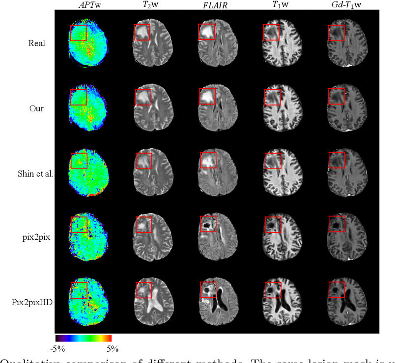 Figure 3 for Lesion Mask-based Simultaneous Synthesis of Anatomic and MolecularMR Images using a GAN