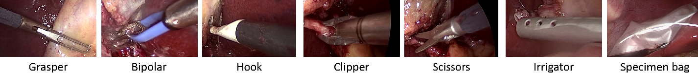 Figure 3 for EndoNet: A Deep Architecture for Recognition Tasks on Laparoscopic Videos