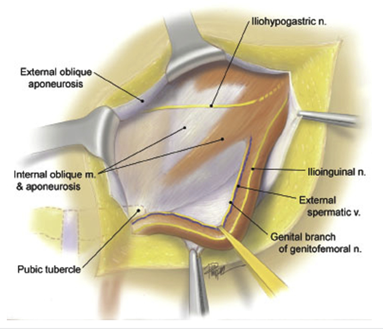Figure 1 From Groin Pain After Inguinal Hernia Repair Semantic