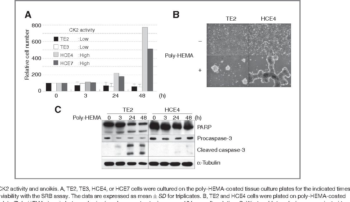 Figure 1 from Protein kinase casein kinase 2-mediated upregulation