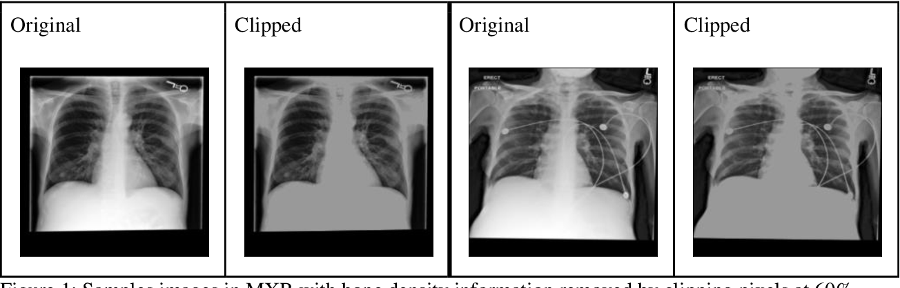 Figure 2 for Reading Race: AI Recognises Patient's Racial Identity In Medical Images