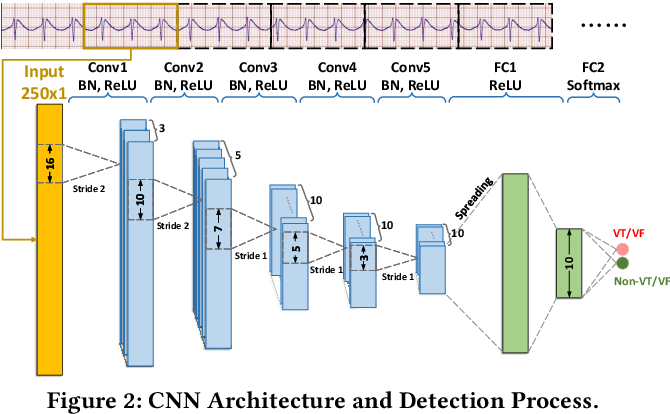 Figure 2 for Personalized Deep Learning for Ventricular Arrhythmias Detection on Medical IoT Systems