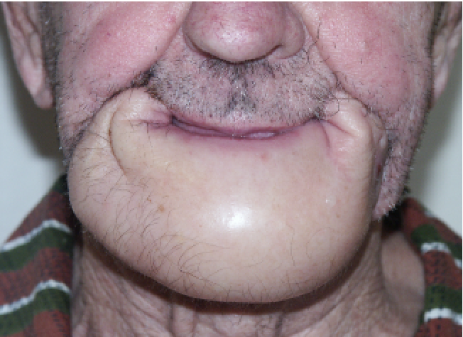 figure 5 from 5 year experience with lower lip cancer semantic