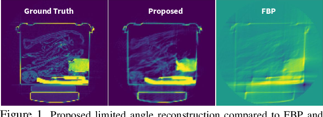 Figure 1 for Lose The Views: Limited Angle CT Reconstruction via Implicit Sinogram Completion